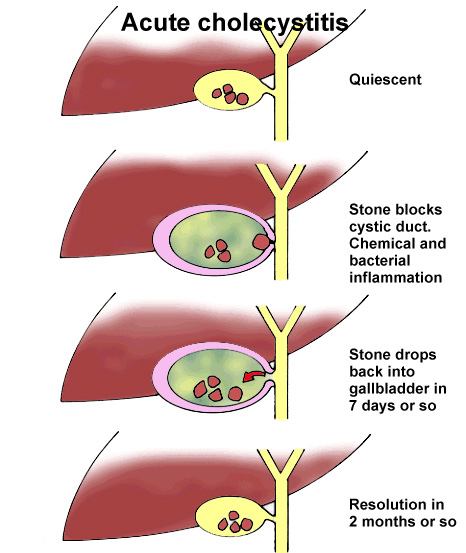 3 what is the relationship between gallstones and cholecystitis