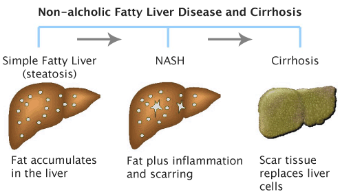 Liver Condition In Obese Patients May Not Increase Risk Of