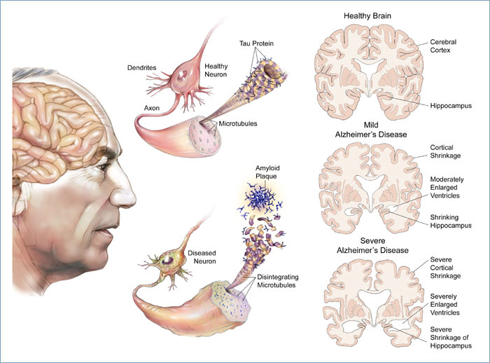 Causes And Risk Factors Of Alzheimer's Disease