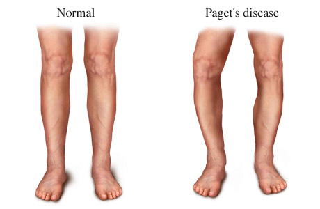 what is paget's disease? | medtalk