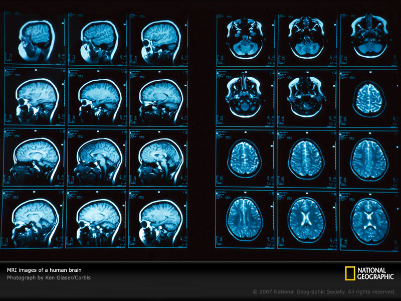 What is a Brain Scan with pictures