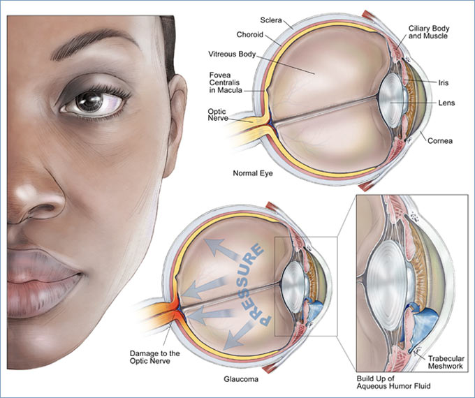 Forms of Glaucoma | Medtalk