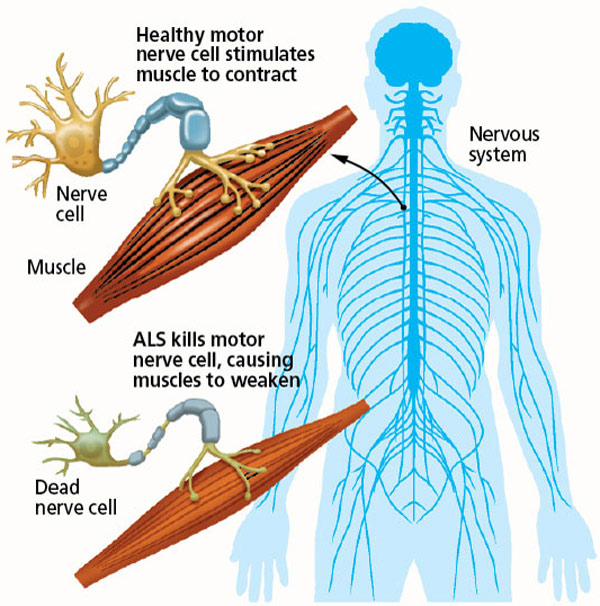 What is als medtalk for Motor neuron disease symptoms early