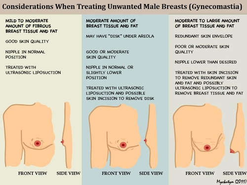 Lumps after breast reduction